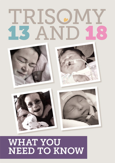 Trisomy 13 and 18: What does it mean?